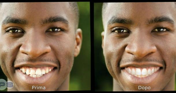 Projetar um novo sorriso a partir de uma foto facial