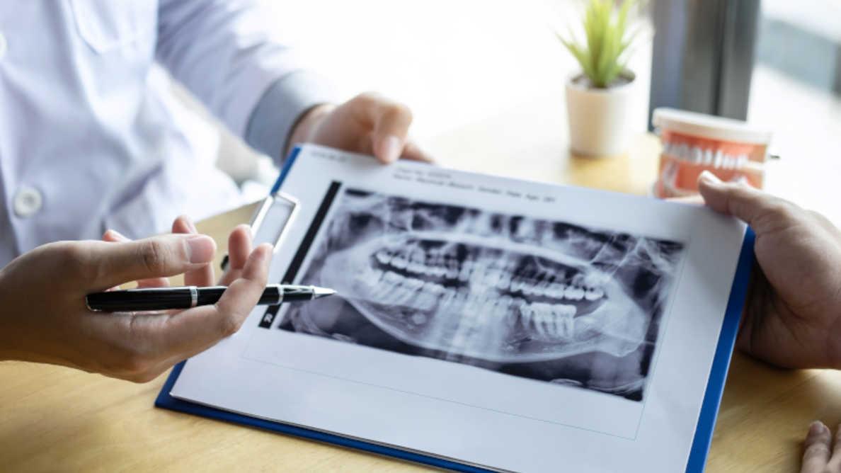 Nova pesquisa pode prevenir danos no maxilar de pacientes com câncer que precisam de cirurgia oral