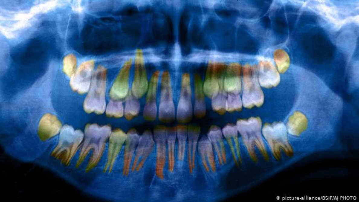 Os níveis de estresse são refletidos nos dentes